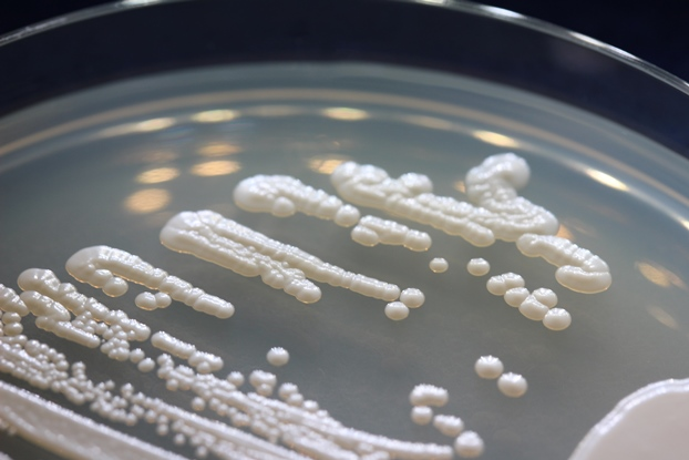 an analysis of the characteristics of yeast Analysis of gene function due to the ease and precision with which its genome can be manipulated the ability of budding yeast to undergo efficient homologous.